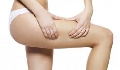 Bio oil vergetures : vous occuper de votre peau en un clin d'oeil